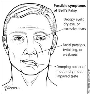 bells-palsy-symptoms